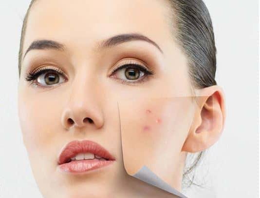 (P) Tratamentul acneei și cicatricilor post acneice